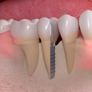 hambaimplantaadid