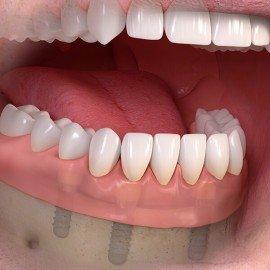 implantaadid