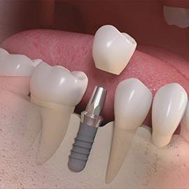 Side_cut_of_titanium_implant