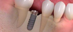 implantaadi paigaldamine
