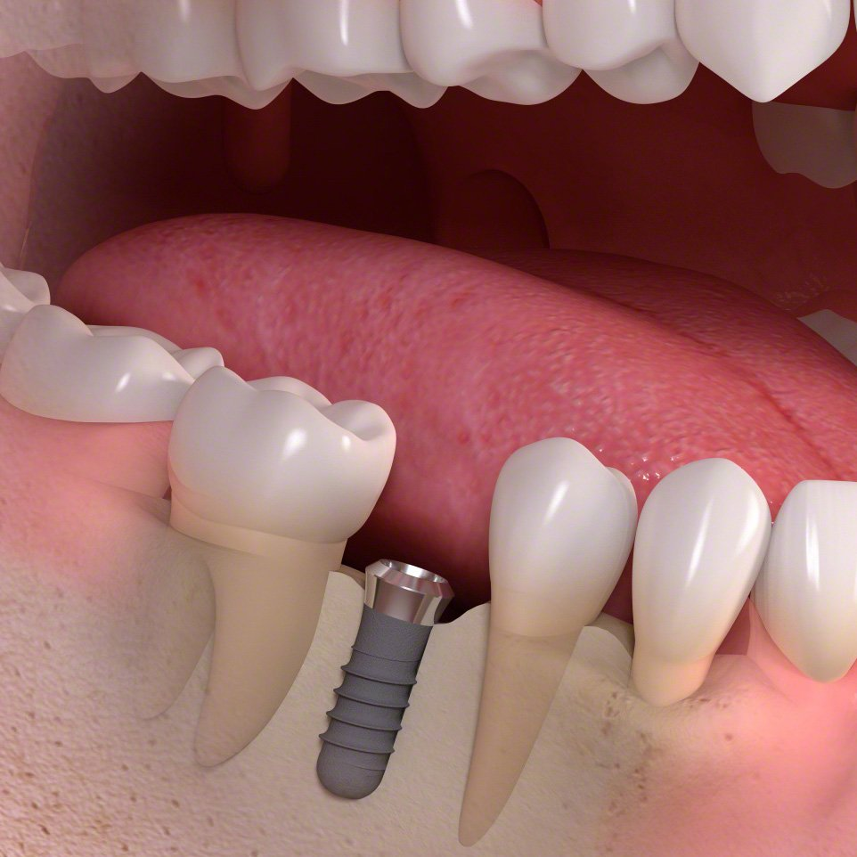 Size_of_an_implant-borne_artifical_tooth